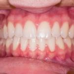 fantomy zębów - Dentonet.pl