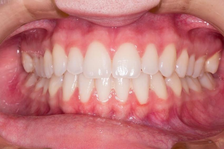 Światłoutwardzalne fantomy stomatologiczne nagrodzone