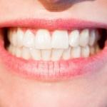 Europejski Dzień Periodontologii - Dentonet.pl