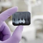 kanały zębowe