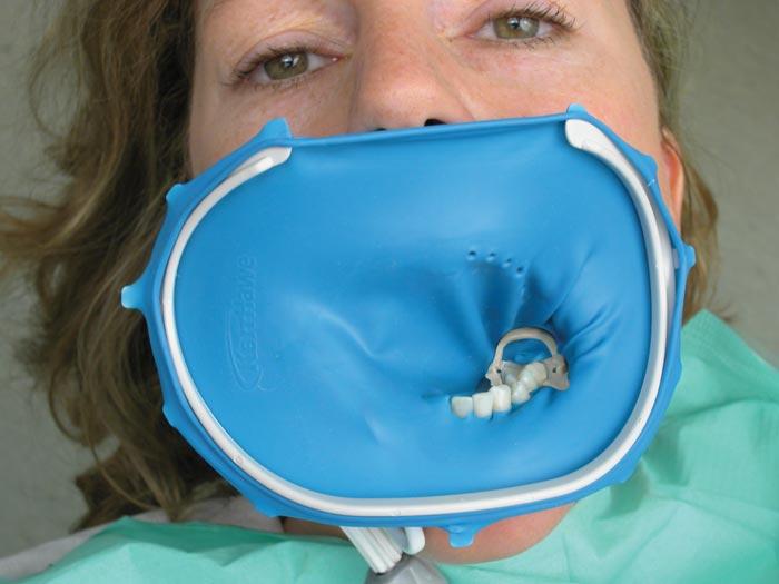 Koferdam – jaką odgrywa rolę w leczeniu stomatologicznym?