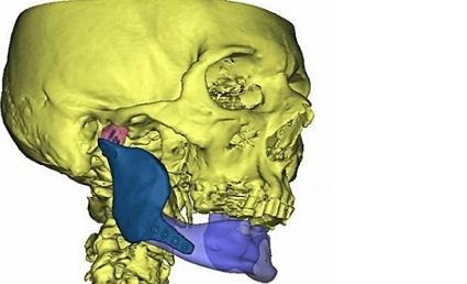 Implant z drukarki 3D – szczegóły operacji