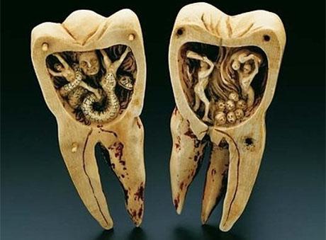 Przerażające robaki zębowe