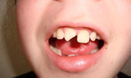 Postępowanie w przypadku wybicia lub złamania zęba