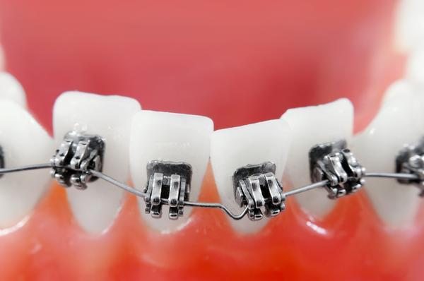 Aparat na zęby nie musi szpecić
