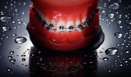 Czy aparat ortodontyczny może popsuć zęby?