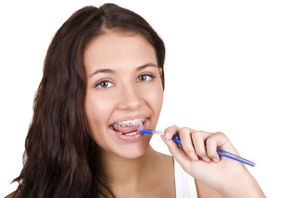 Jak działa aparat ortodontyczny?