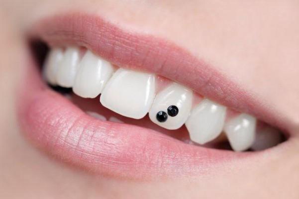 Modne zdobienie zębów