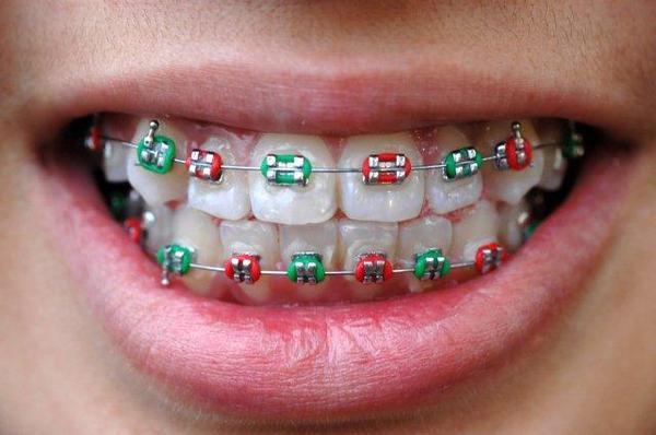 Modna wizyta u ortodonty