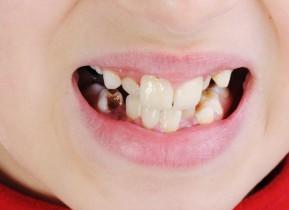 cavitioes child