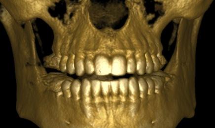 Pierwsze zdjęcia rentgenowskie zrobiono prawie 120 lat temu
