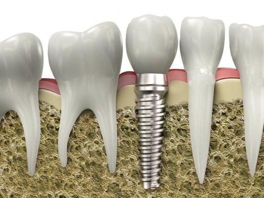 Zawód: implantolog