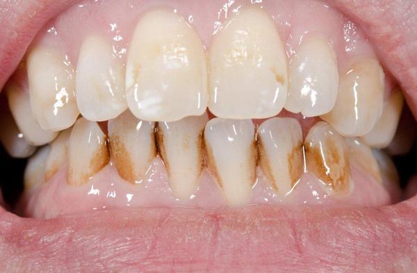 Najpowszechniejsze choroby zębów