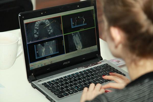 Radiografia cyfrowa i tomografia w endodoncji – kurs praktyczny dla lekarzy stomatologów.