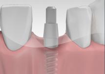 Implanty od chirurga czy protetyka?