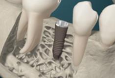 Co warto wiedzieć o tanich implantach