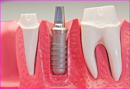 Implantologia – czy świadczymy usługi na odpowiednim poziomie?