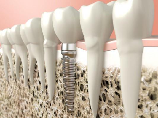 Natychmiastowa implantacja – warto czy nie warto?