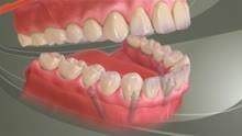 Stabilizacja pierwotna implantu
