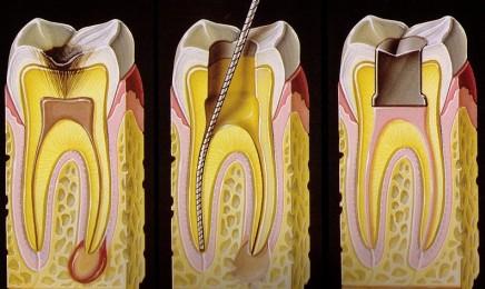 Leczenie endodontyczne krok po kroku