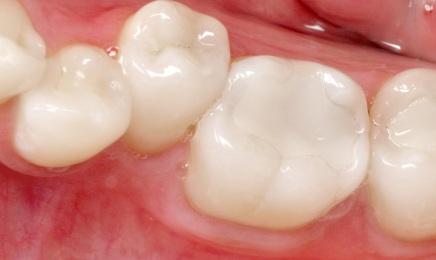 Wypełnienia stosowane w stomatologii: materiały kompozytowe