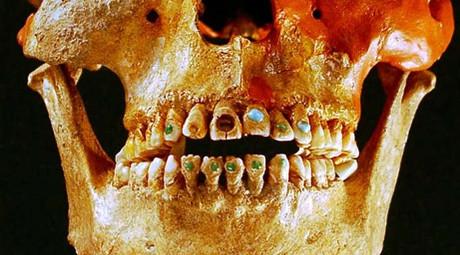 Majowie prekursorami stomatologii estetycznej