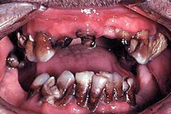 Metamfetamina zabójstwem dla zębów