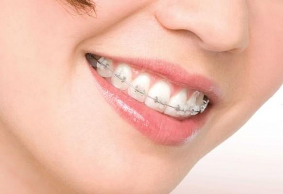 Mikroimplanty ortodontyczne – prosty uśmiech nowej generacji