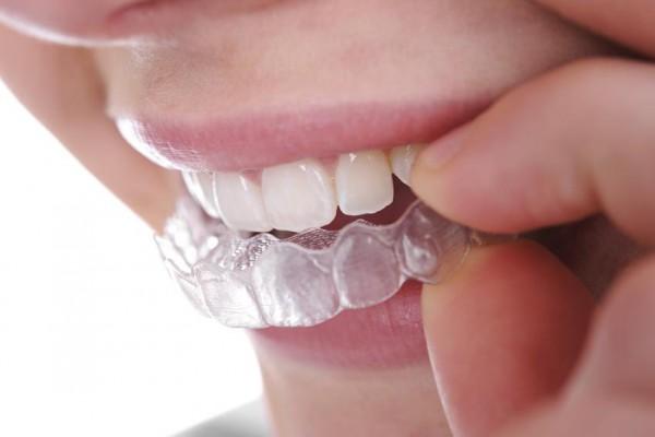Aparat retencyjny, utrwalony efekt leczenia ortodontycznego
