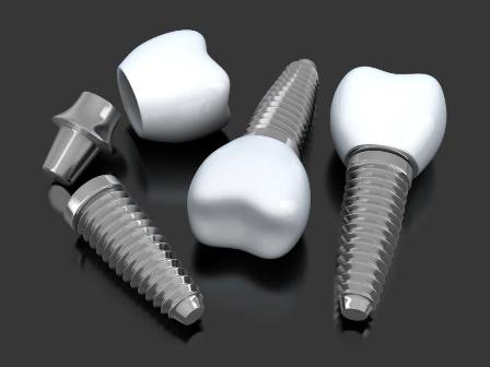 Seminarium naukowe poświęcone implantologii