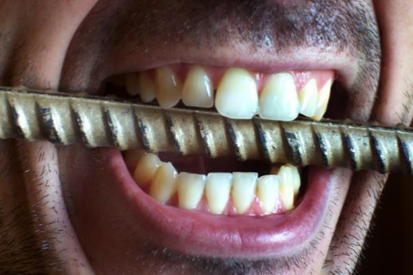 7 najdziwniejszych faktów na temat zębów