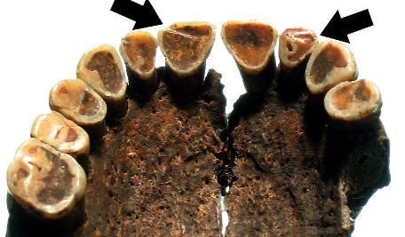 Dziwne ślady na zębach neolitycznych rolników