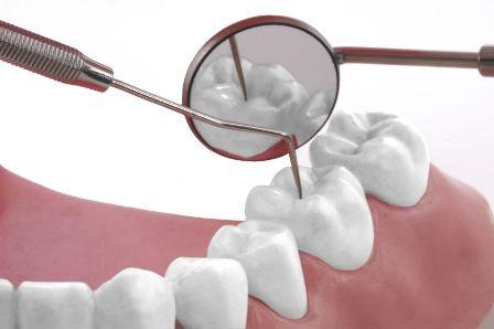 Wybielanie zębów, cz. 5
