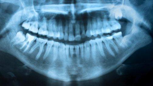 Audyty radiologiczne – coroczny obowiązek