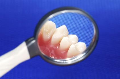 """COVID niszczy zęby. """"Nawet sześć złamań dziennie"""""""