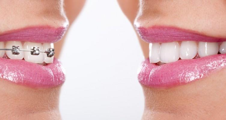 Powikłania po leczeniu ortodontycznym