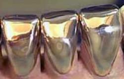 Powrót złotych zębów?