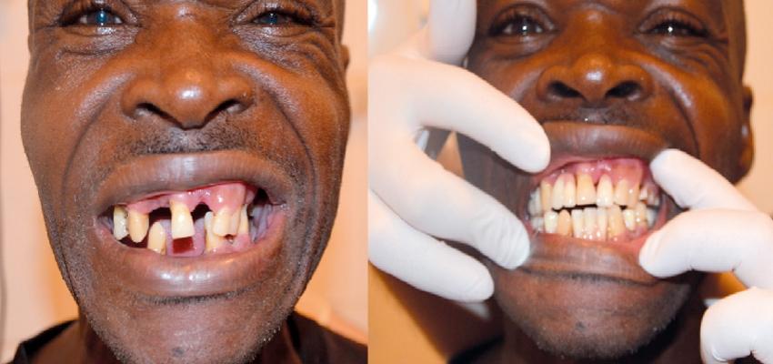 Kilkaset kilometrów do dentysty….
