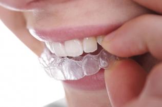 Dentonet - aparaty retencyjne w leczeniu stomatologicznym