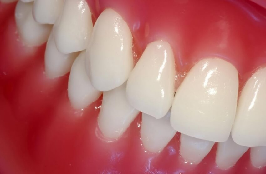 Co jeść przy protezie zębowej? Poradnik dla pacjentów