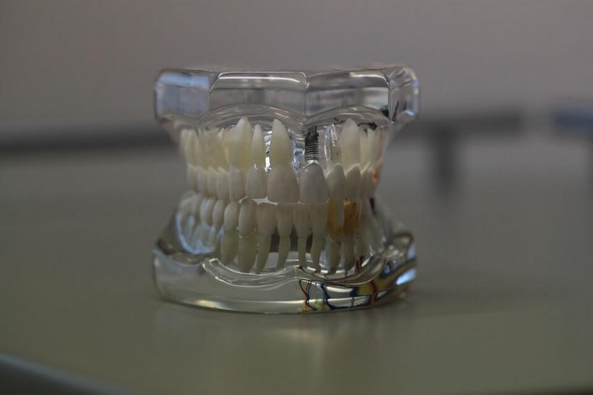 Zastosowanie druku 3D w stomatologii: protetyka i ortodoncja