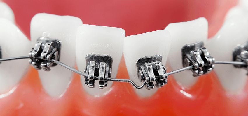 Na ortodontę pacjenci czekają najdłużej. Nawet 12 miesięcy