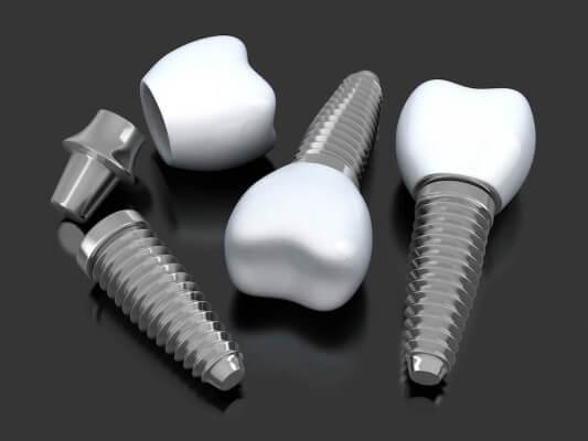 Dlaczego nowoczesne implanty zębowe produkuje się z tytanu?