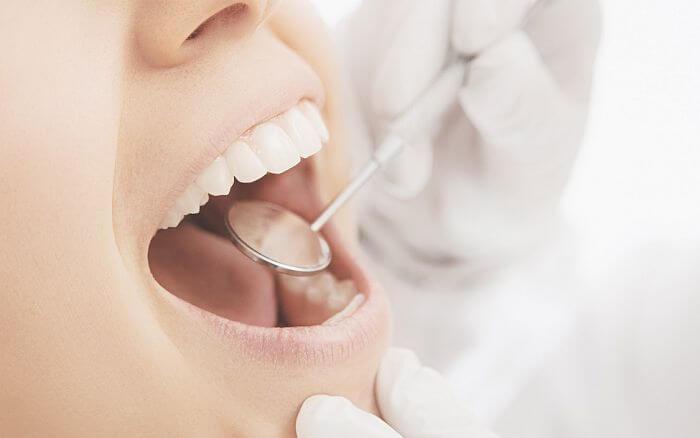 Jak rozpoznać liszaj płaski w jamie ustnej i jak go leczyć?