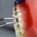 Rodzaje aparatów ortodontycznych - Dentonet.pl