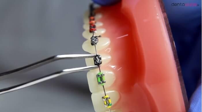 Co dalej z ortodoncją dziecięcą? NIL pisze do Rzecznika Praw Pacjenta