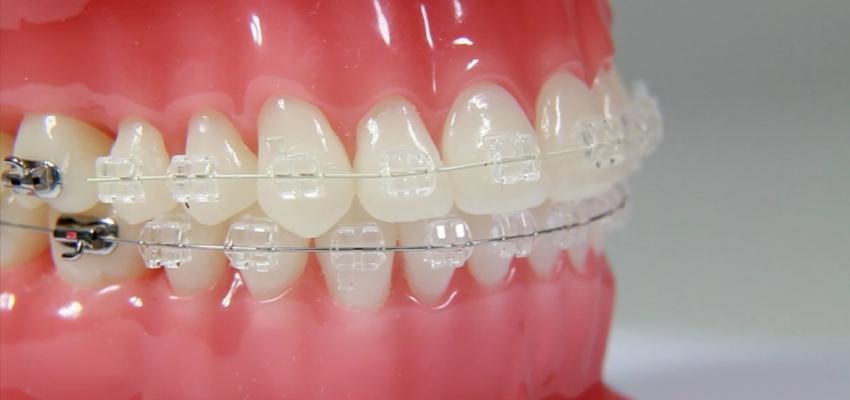 """Ortodoncja może być """"estetyczna"""" – nowoczesne aparaty dla pacjentów"""