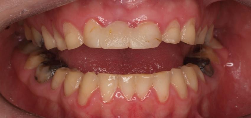 Rehabilitacja pacjentów z erozją zębów – funkcjonalnie i estetycznie