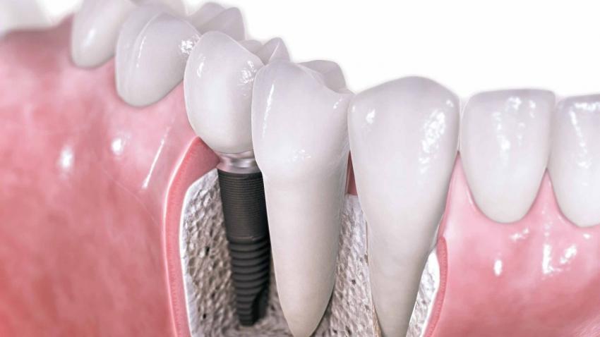 Zalecenia higienizacyjne – pacjent implantologiczny