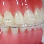 aparaty ortodontyczne - Dentonet.pl